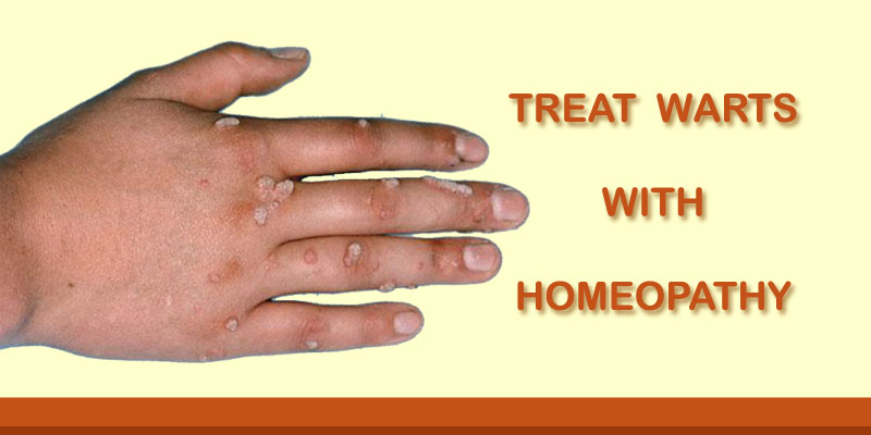 homeopathy for papilloma)