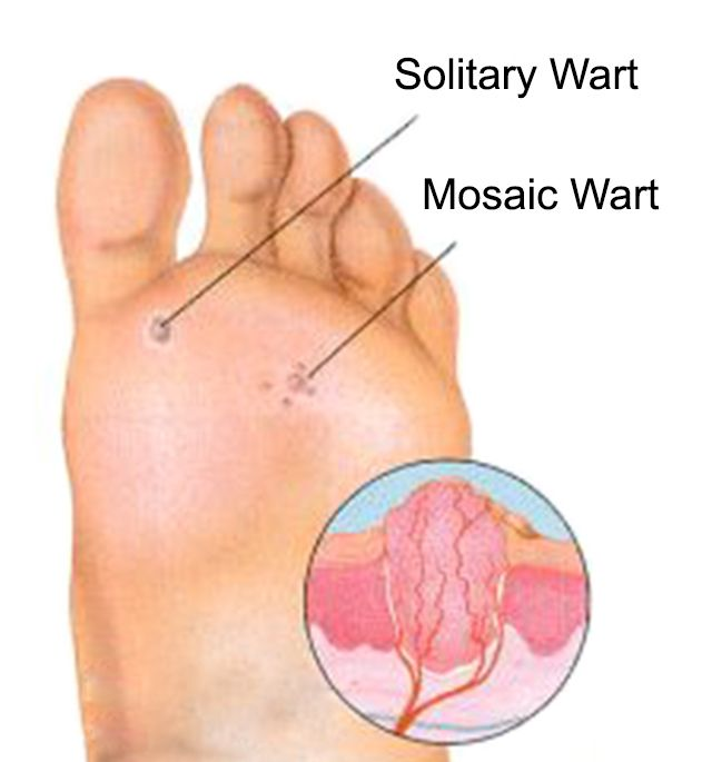 foot warts mosaic)
