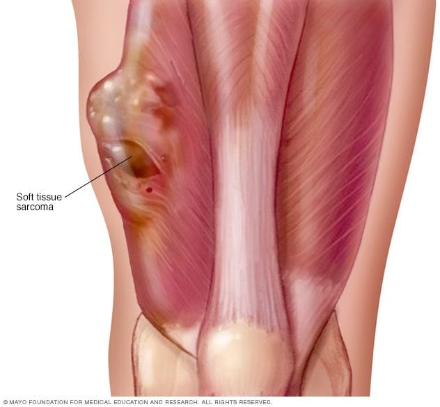 pozitia fibroamelor | Health, Womens health magazine, Uterine fibroids