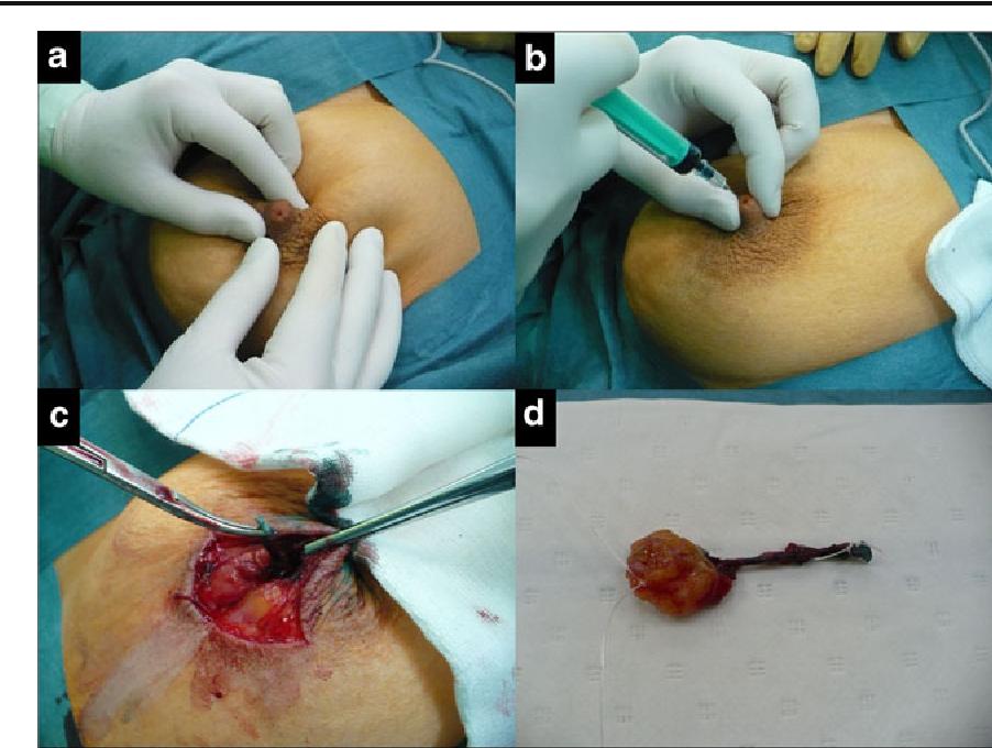duct papilloma surgery