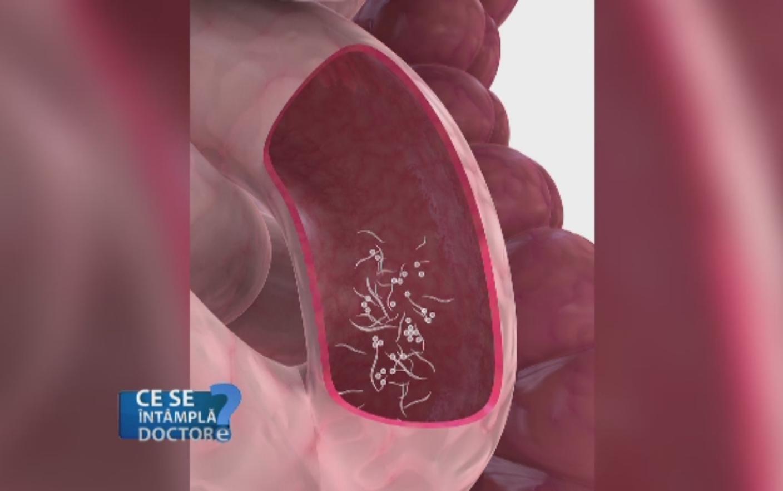 tipuri de paraziti intestinali la copii)