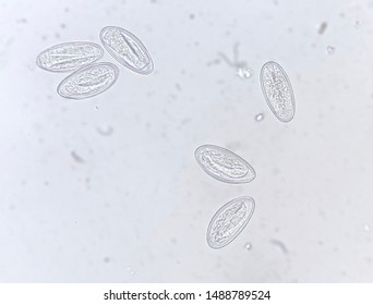 enterobius vermicularis vector)