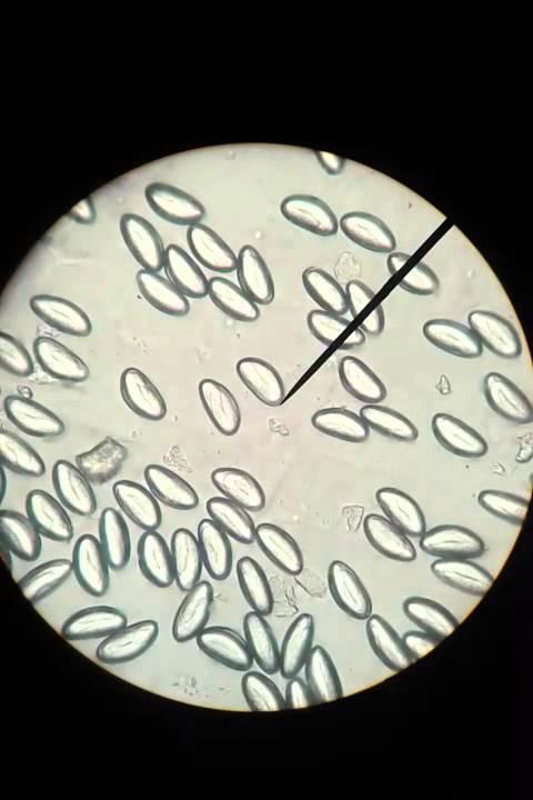 papillomas mouse skin