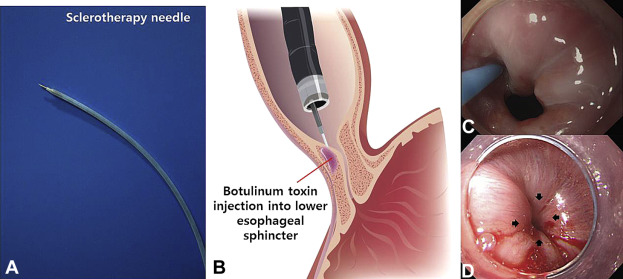BOTULINUM TOXIN IN THE TREATMENT OF CYSTITIS.