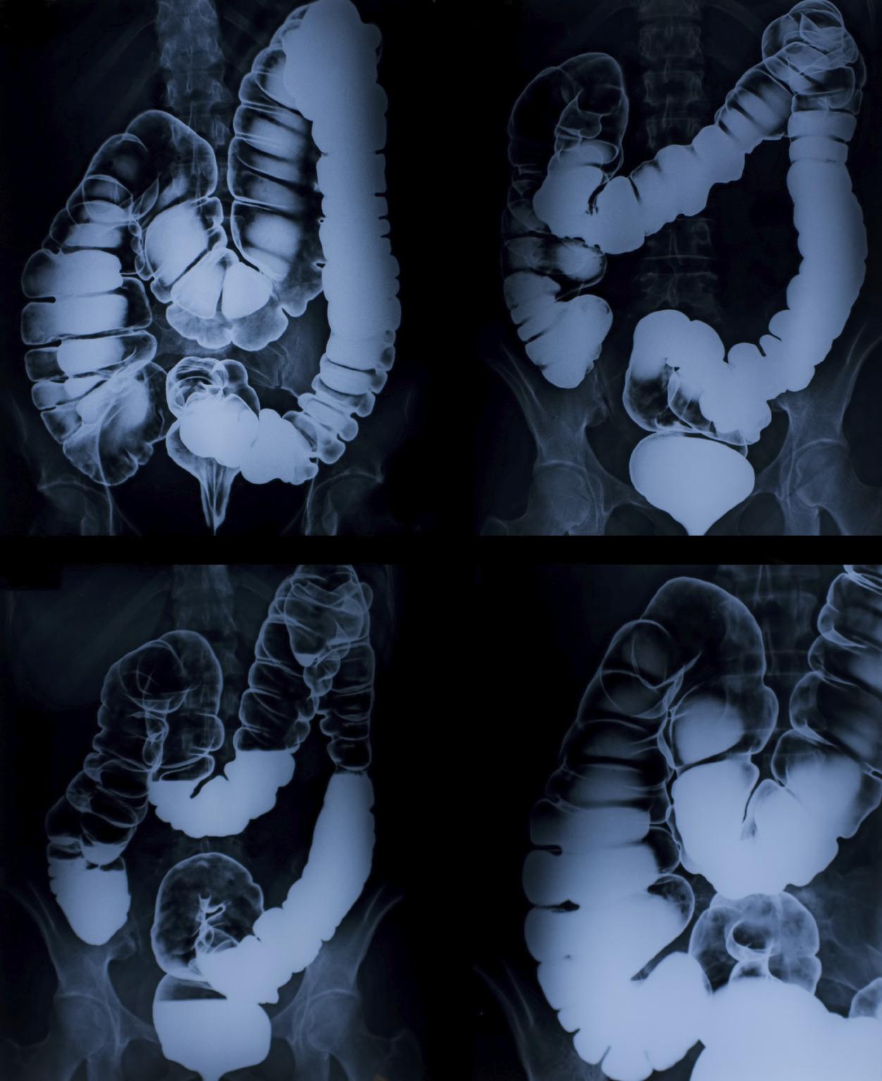 cancer de colon rayos x)