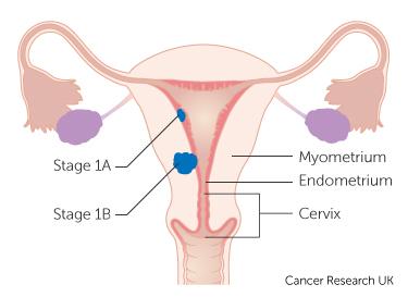 endometrial cancer nhs)