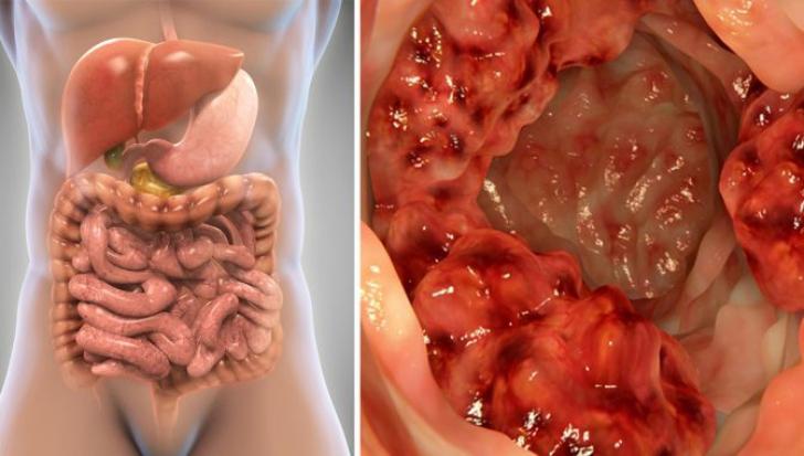 cancer de colon la copii simptome hpv virus ansteckend fur manner