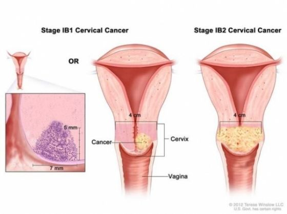 cancer col uterin cervical