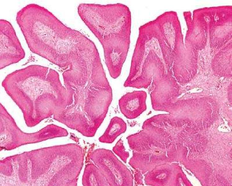 sinonasal papilloma exophytic type