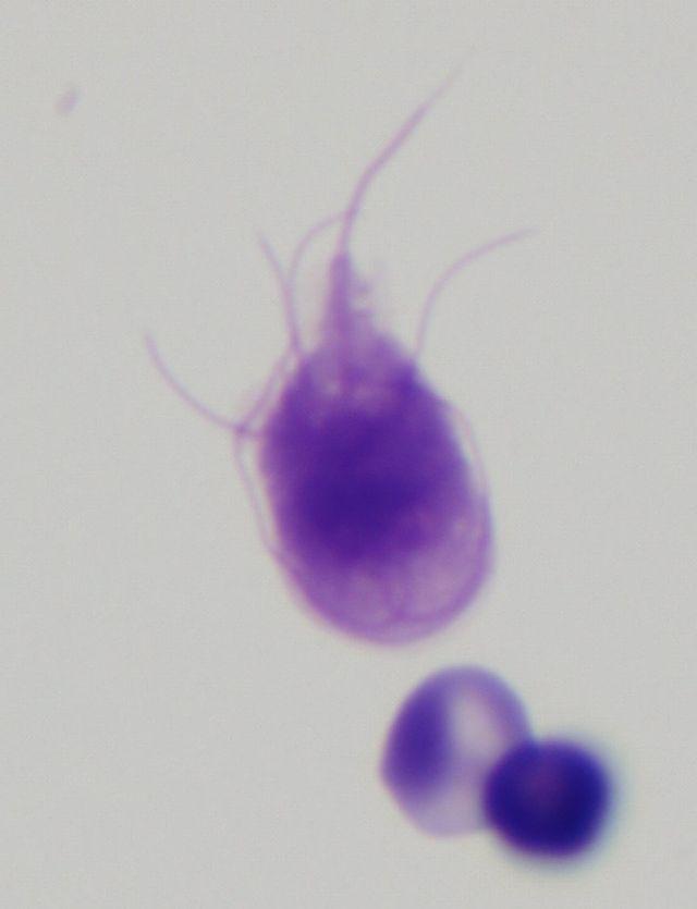 paraziti giardia lamblia shqip)