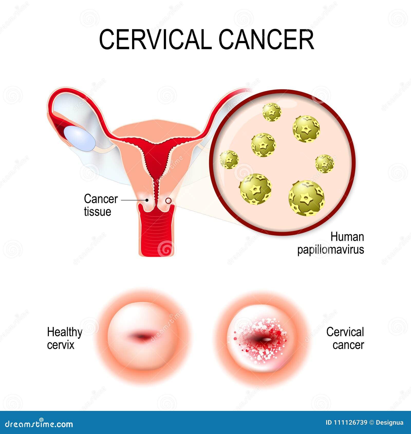 human papillomavirus infection cervical cancer)