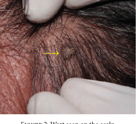 papilloma wart on scalp