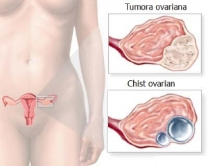 cancer ovarian simptome indicatii