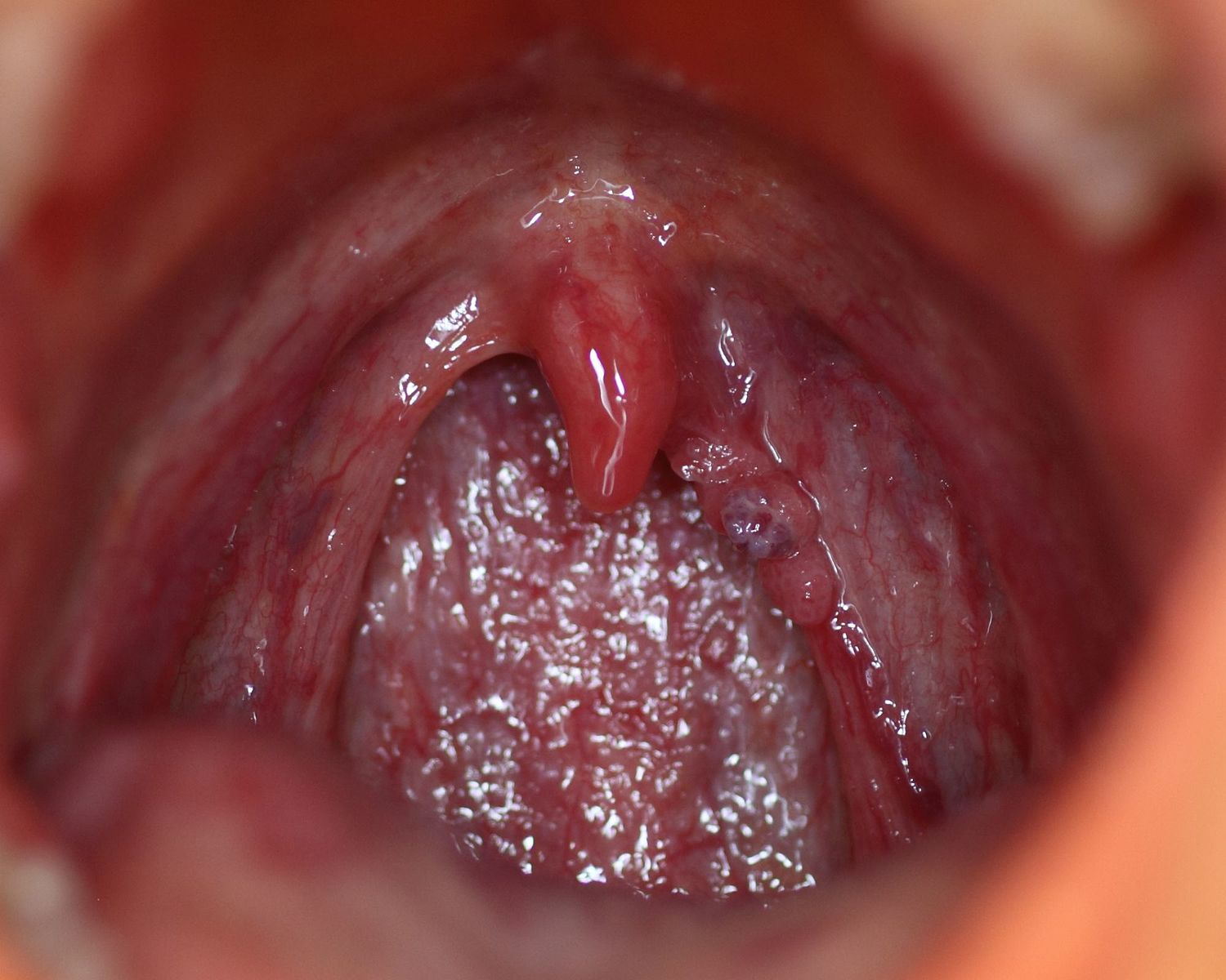 human papillomavirus on tongue