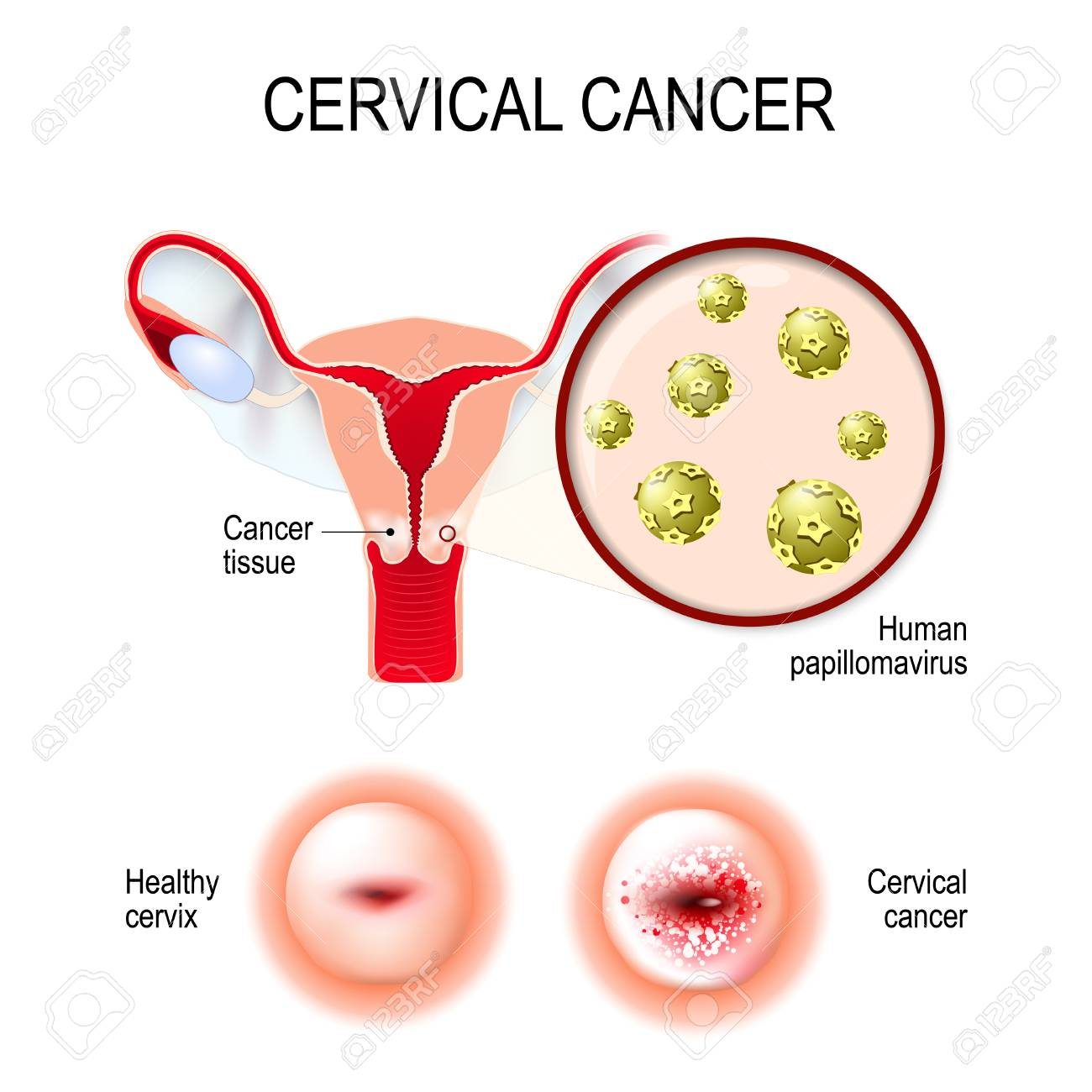 papilloma cervical cancer)