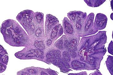 squamous papilloma of esophagus pathology outlines)