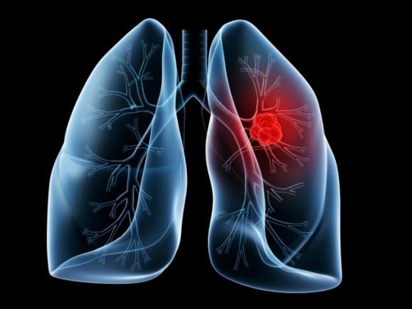 cancer pulmonar viena plasturi detoxifiere plafar