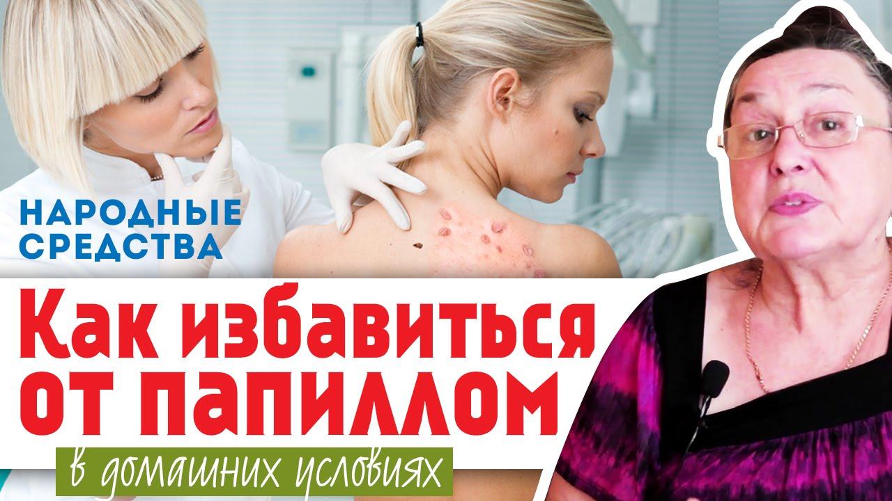 papillomavirus maladie venerienne plantar wart on foot keeps coming back