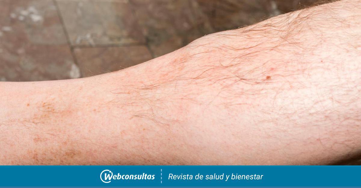 cancer sarcoma tejido blando