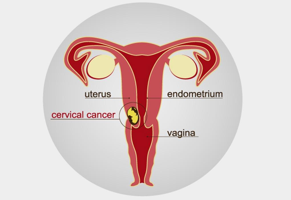 cervical cancer on fertility)