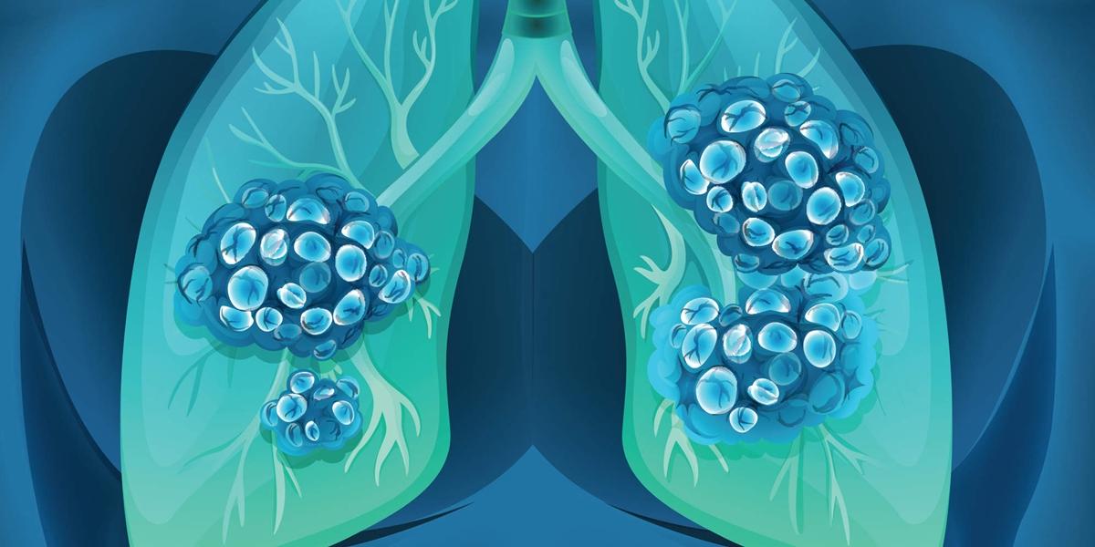 Imunoterapia in cancerul pulmonar cu celule mici – speranta sau iluzie?