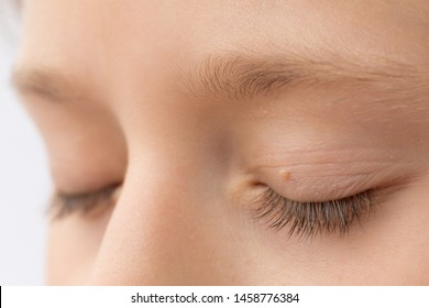 eye papilloma images