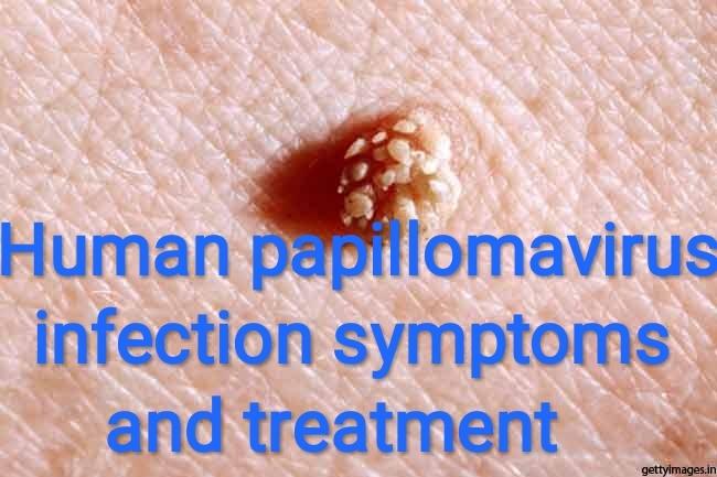 papillomavirus infection papilloma)