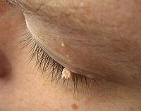 papilloma on eyelid icd 10)