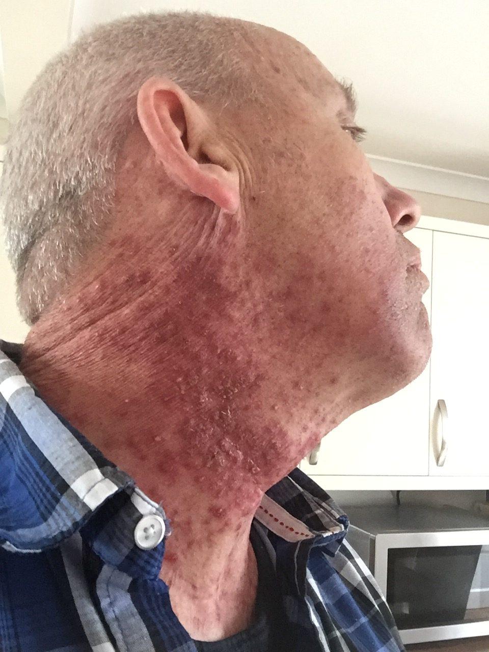squamous papilloma on skin