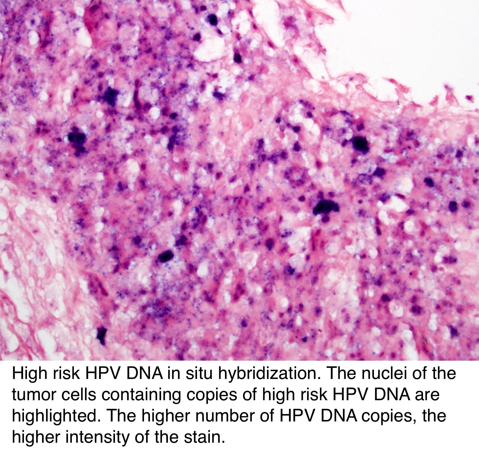 hpv esophagus pathology outlines