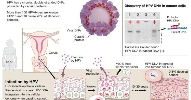 hpv and how it causes cervical cancer