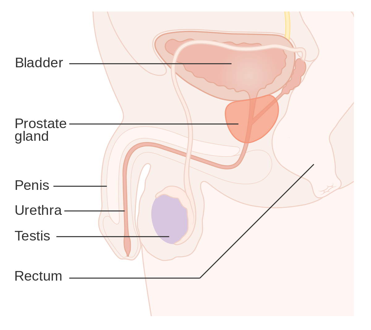 cancer benign de prostata)