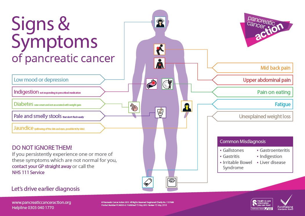 pancreatic cancer stages timeline