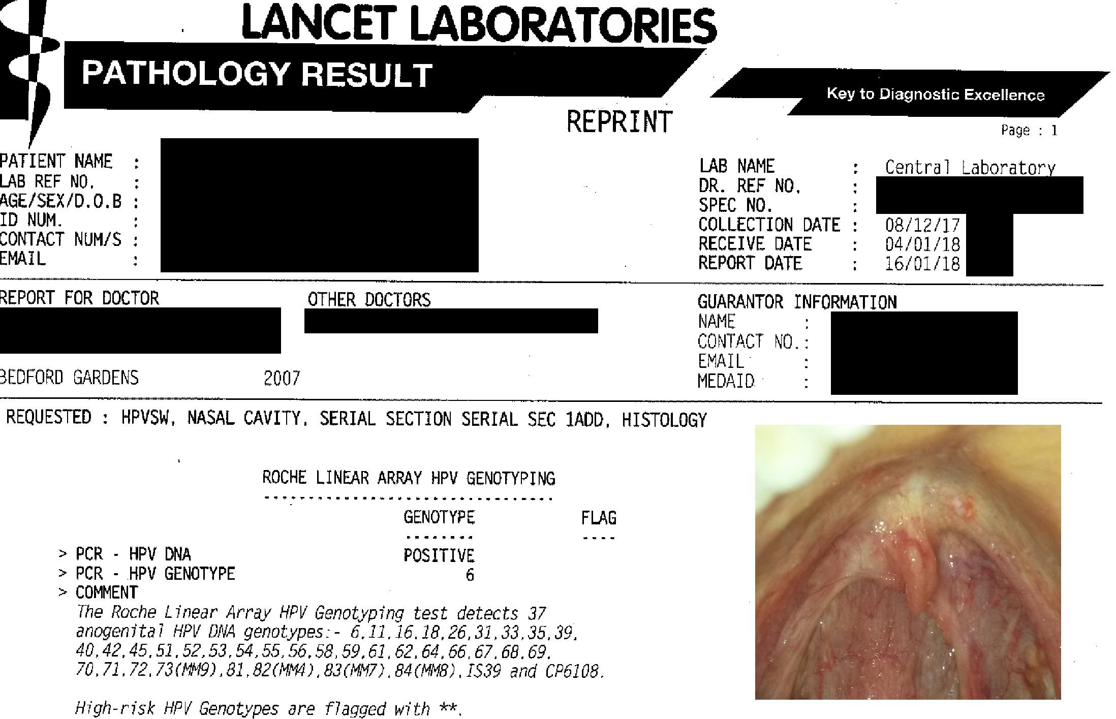 hpv in throat test viermi paraziti la copii