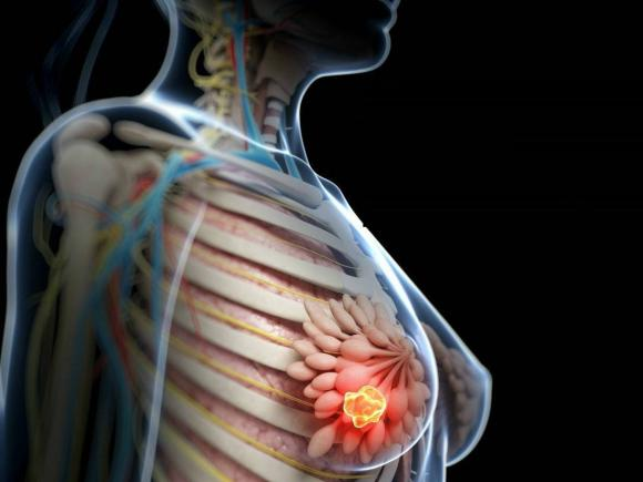 Cancer la san - Diagnosticare | Prevenire | Factori de risc - Donna Medical Center