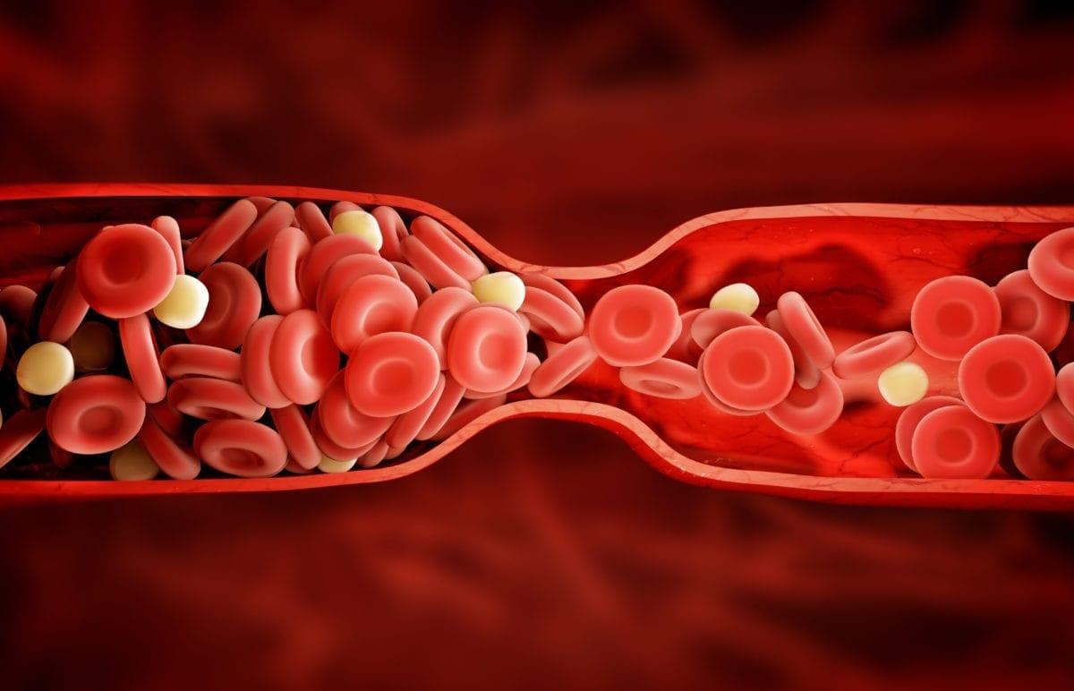 Haemorrhoid Surgery » LaurusMedical - Hemorrhoids, Varicose Vein, Gastroenterology, Dermatology