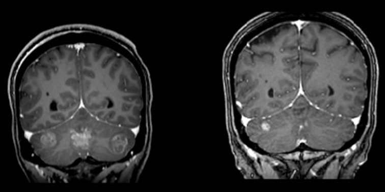 metastatic cancer from lung to brain