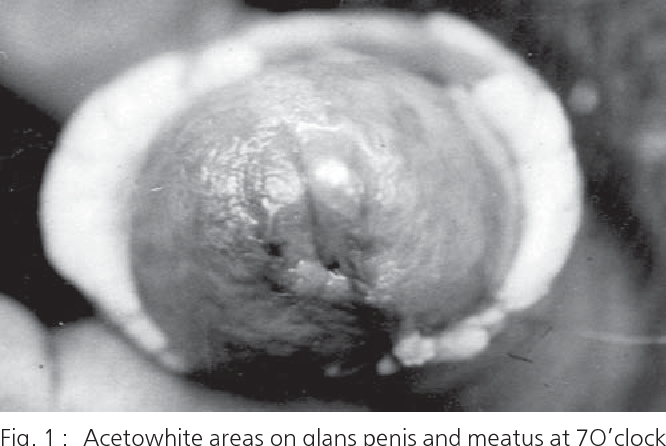 hpv urethral cancer