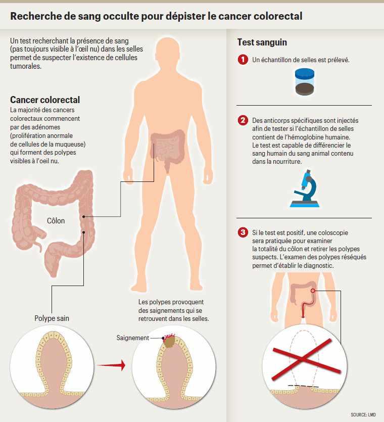 cancer colorectal 80 ans)