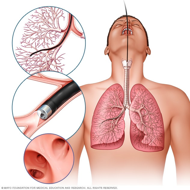 cancer pulmonar bases medicina)