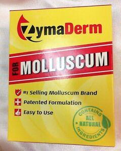 wart treatment molluscum)