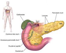 cancer pancreas head