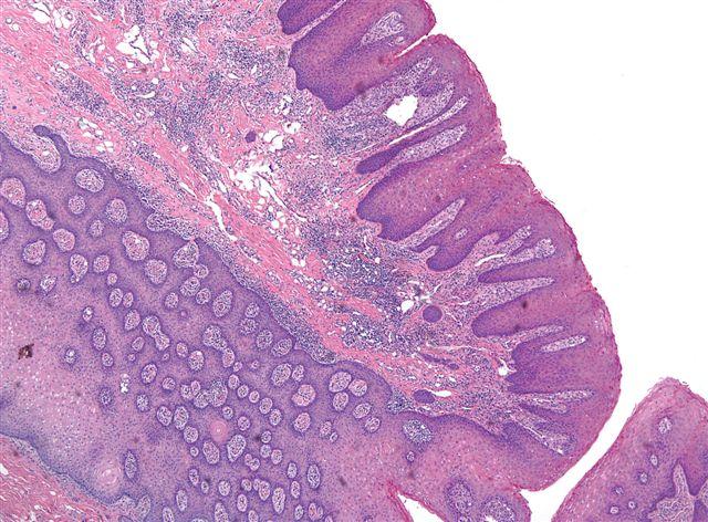 squamous papilloma scrotum)