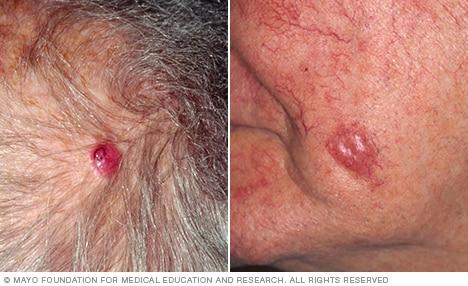 oxiuros y anemia cancer col uterin virus