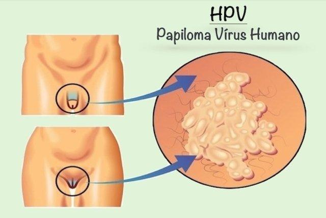 virus del papiloma humano sintomi)