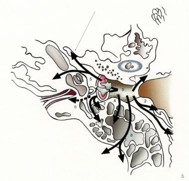 squamous papilloma temporal bone