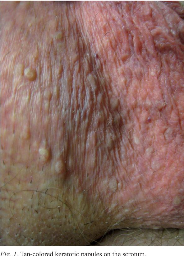 molluscum papillomavirus)