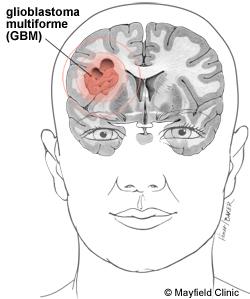 cancer cerebral esperanza de vida