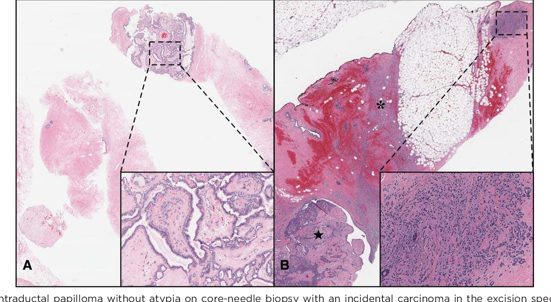 focal intraductal papilloma)