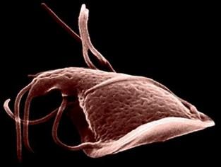 viermi sau viermi parazity